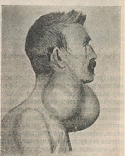 Thyroid cancer.jpg