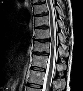 Transverse myelitis Acute transverse myelitis (ATM) is an inflammatory demyelinating disorder of the spinal cord that can be either idiopathic (IATM; see this term) or secondary to a known cause (SATM; see this term)