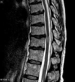 Поперечный миелит MRI.jpg