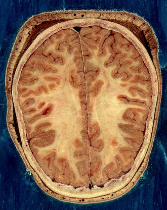 Nervous system - Horizontal section of the head of an adult female, showing skin, skull, and brain with grey matter (brown in this image) and underlying white matter