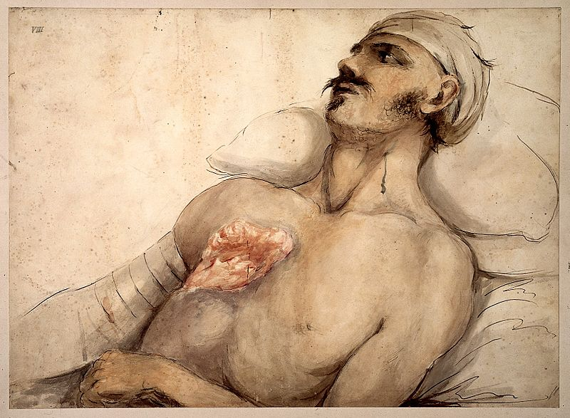 File:Watercolour, wounded soldier at Waterloo Wellcome L0022544.jpg