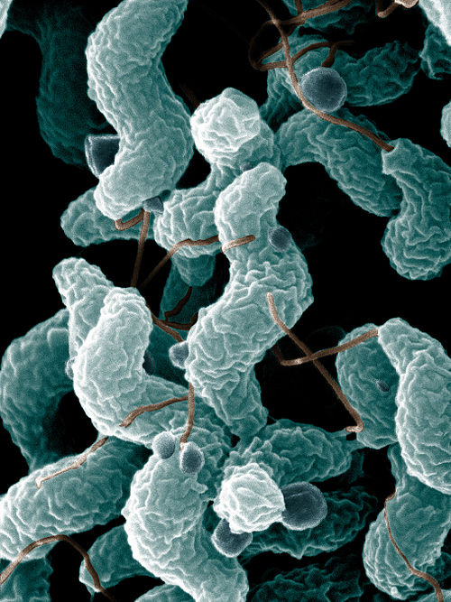 Campylobacter bacteria are the number-one cause of food-related gastrointestinal illness in the United States. This scanning electron microscope image shows the characteristic spiral, or corkscrew, shape of C. jejuni cells and related structures. ARS Campylobacter jejuni.jpg