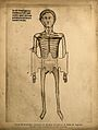 A skeletal cadaver with two flaps of skin of the abdomen cut Wellcome V0007729ER.jpg