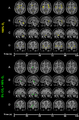 CO2-O2-fMRI-all-over-time.png