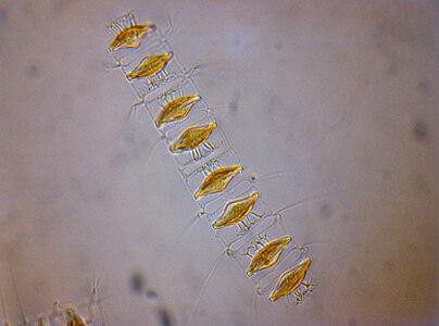 Chaetoceros diadema spores.jpg