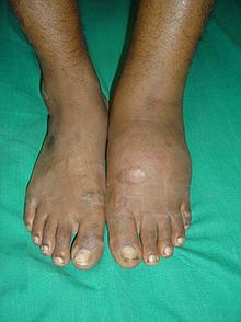 edema en pies diabetes