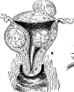 Fibroid.jpg
