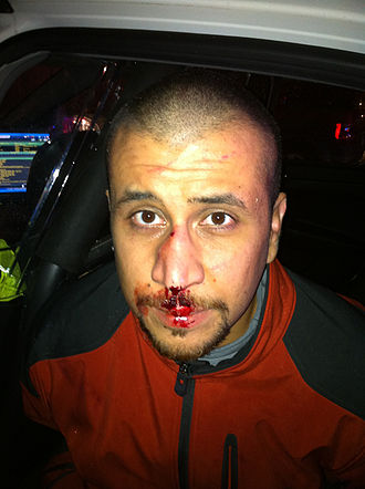 Shooting of Trayvon Martin - George Zimmerman with a bloody, swollen nose in the back seat of a police car on the night of the shooting