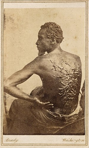 Timeline of African-American history - 1863 Medical examination photo of Gordon showing his scourged back, widely distributed by Abolitionists to expose the brutality of slavery.