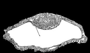 Inner cell mass - Image: Gray 10
