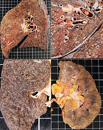 Gross pathology - Gross pathology of miliary tuberculosis.