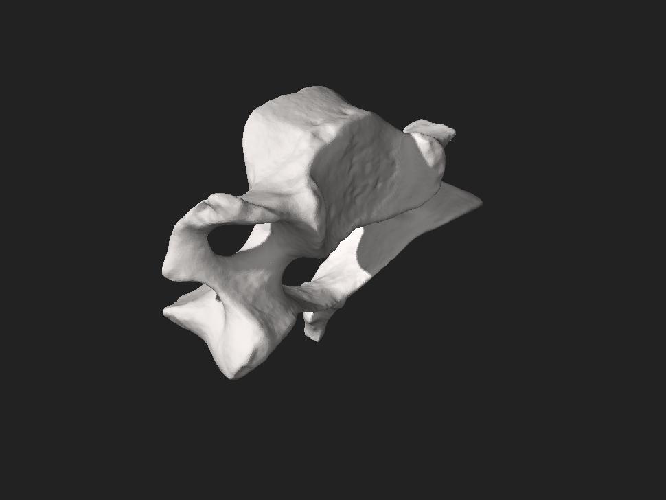Human cervical vertebra.stl