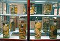 Istituto di anatomia patologica, museo, campioni 19 feti malformati.JPG