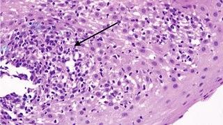 Lymphocytic esophagitis