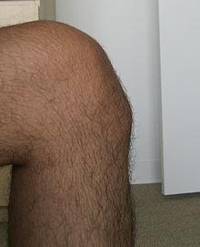 25-year-old male with Osgood–Schlatter disease.