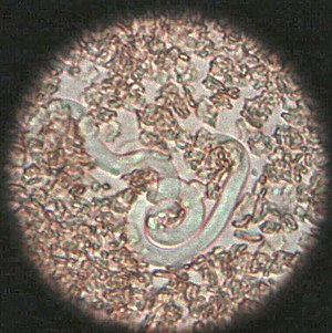 Picture of a heartworm (Dirofilaria immitis) m...