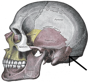 Mastoid part of the temporal bone - Occipitomastoid suture. (Temporal bone is in purple, and mastoid portion is immediately to the left of the tip of the arrow.)
