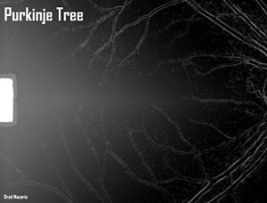 Entoptic phenomenon - Purkinje Tree depiction