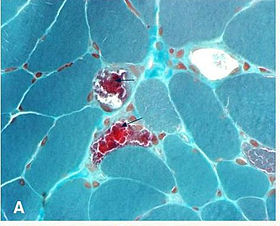 Ragged red fibers in MELAS.jpg