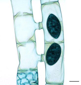 Zygnematophyceae - Conjugation in Spirogyra.