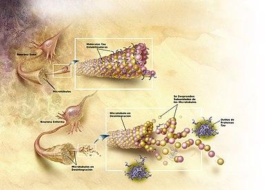 Enfermedad De Alzheimer Wikipedia La Enciclopedia Libre