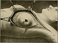 The breast- its anomalies, its diseases, and their treatment (1917) (14734084776).jpg