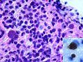 Toxoplasmose.jpg