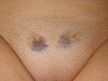 Aug. 2008. Ist die Blase extrem gefüllt, übersteigt der intravesikale Druck den Sphinkterdruck: Durch die Harnröhre entleert sich tropfenweise Urin.