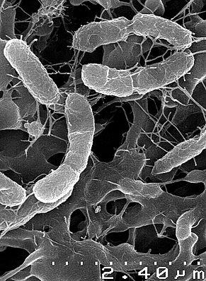 Elektronenmikroskopische Aufnahme von Venenivibrio stagnispumantis-Zellen
