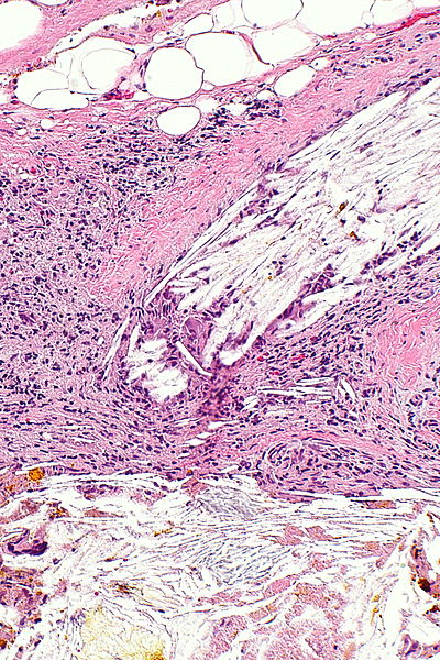 Datei:Xanthogranulomatous cholecystitis - alt -- intermed mag.jpg
