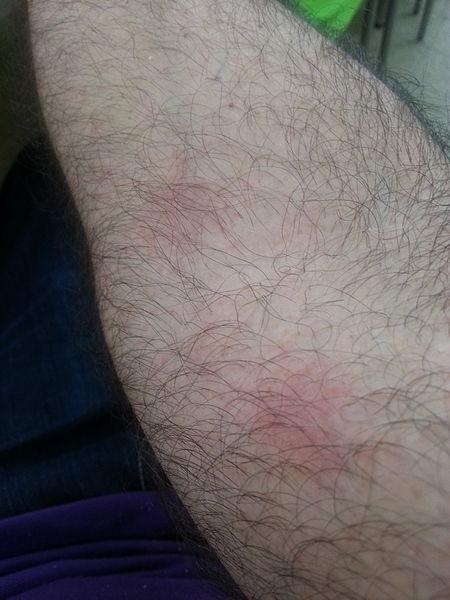 קובץ:Allergy 2015.jpg