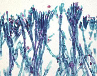 Choanozoa - Image: Asco 1013
