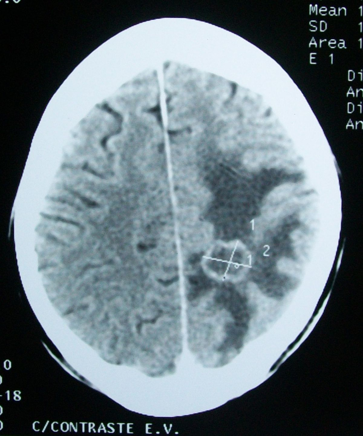 Cerebral Edema Wikipedia