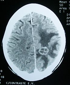 CT brain tumor.jpg