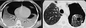 CT of bilateral pneumothoraces by pneumocystis pneumonia cysts