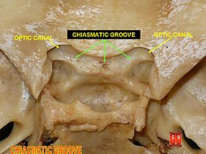 opinions on chiasmatic groove