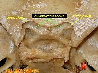 Chiasmatic groove - Chiasmatic groove