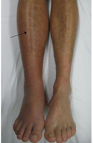 Deep Vein Thrombosis of the leg. .jpg