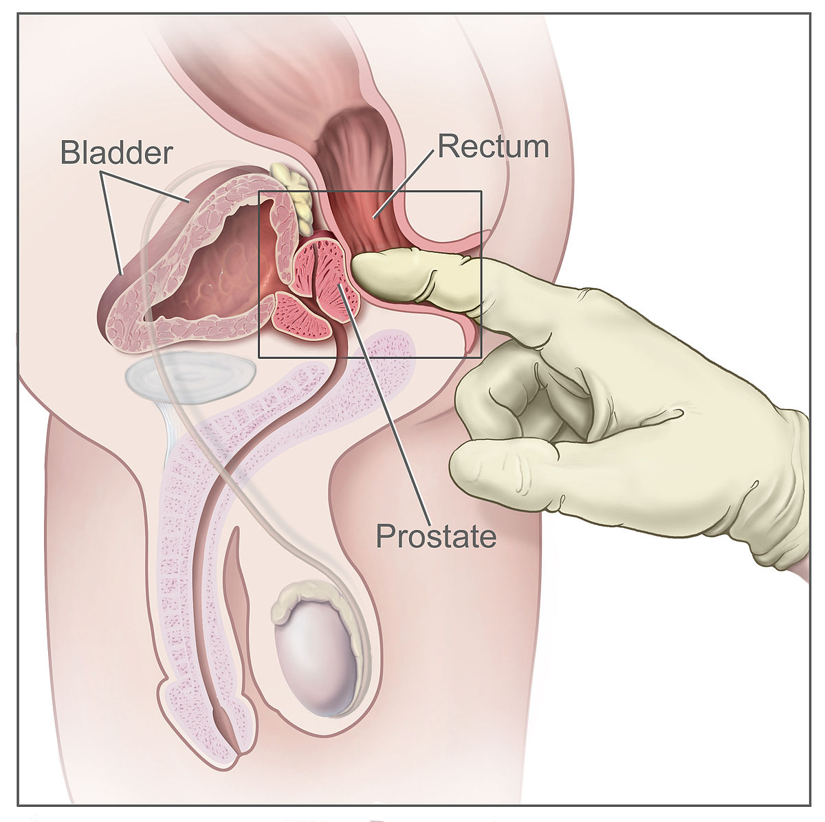 Rectal examination wikipedia pooptronica Image collections