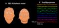 Dup15q EEG signature.png