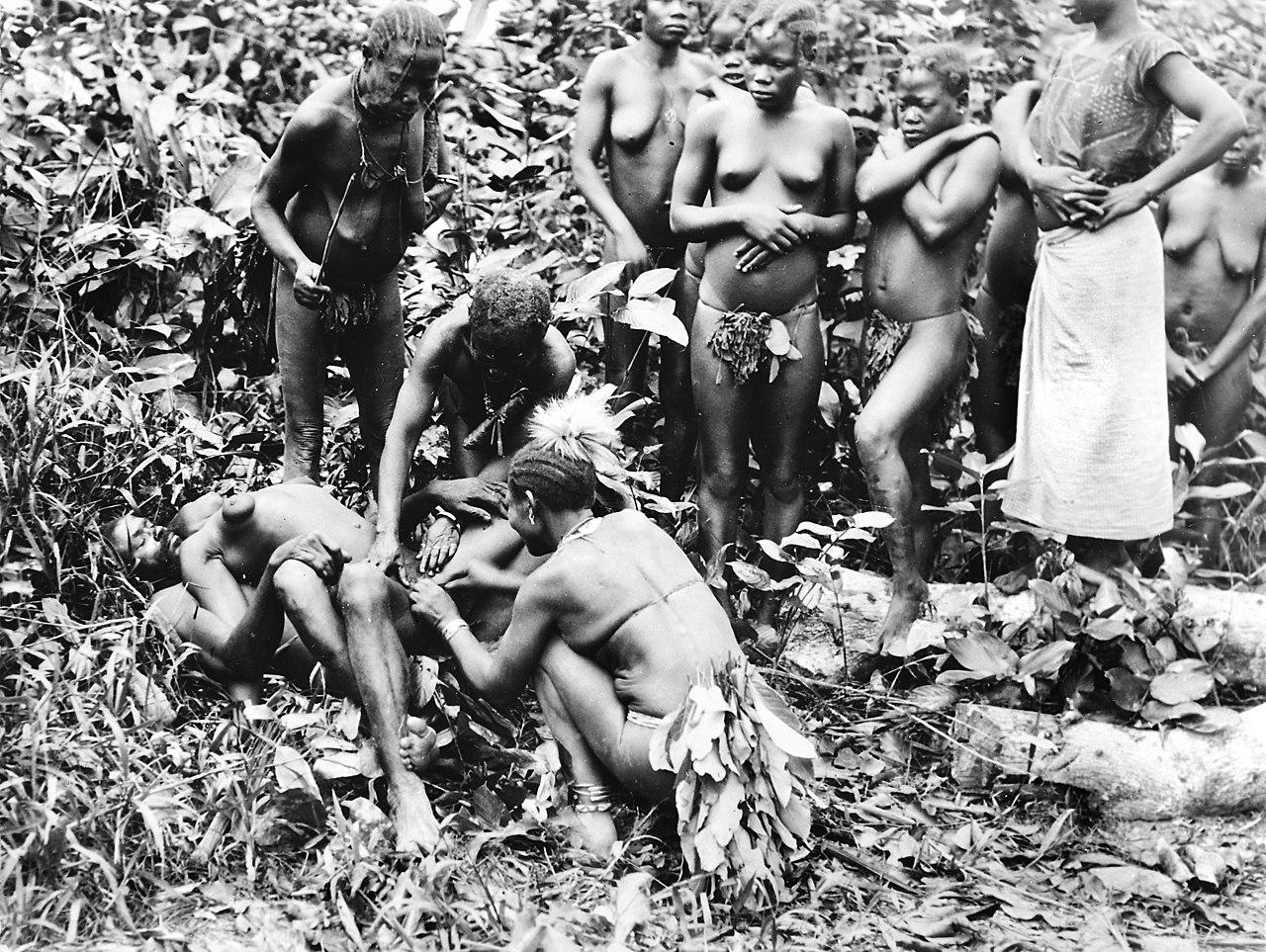 LES MUTILATIONS SEXUELLES FEMININES - gynsforg