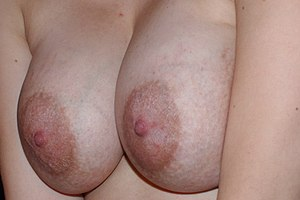 female_breasts