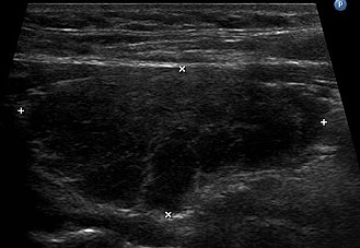 Ultrasound imaging of the thyroid gland (right lobe longitudinal) in a person with Hashimoto thyroiditis Hashimoto-Thyreoiditis.JPG