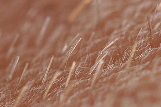 Vellus hair Type of hair that is short, thin, slight-colored, and barely noticeable