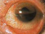 Hyphema - occupying half of anterior chamber of eye.jpg