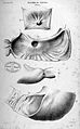 J. Cruveilhier, Anatomie pathologique du corps humain... Wellcome L0023834.jpg