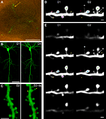 LTP Promotes a Selective Long-Term Stabilization and Clustering of Dendritic Spines.png