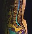 Lumbosacral MRI case 09 10.jpg