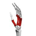 Metacarpal bones (left hand) 03 ulnar view.png