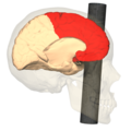 Phineas Gage injury - medial view (frontal lobe).png